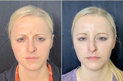 Neurotoxin Botox Gallery - Patient 8525148 - Image 1