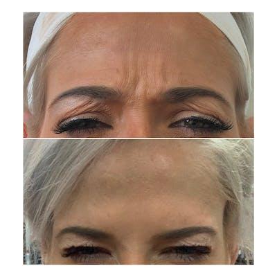 Neurotoxin Botox Gallery - Patient 8525152 - Image 1