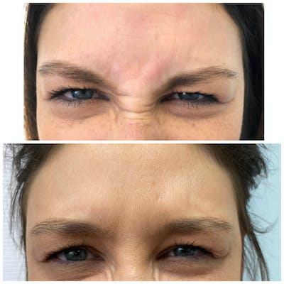 Neurotoxin Botox Gallery - Patient 8525155 - Image 1