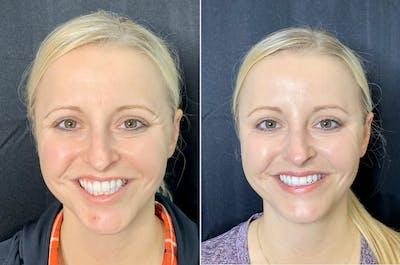Neurotoxin Botox Gallery - Patient 8525162 - Image 1