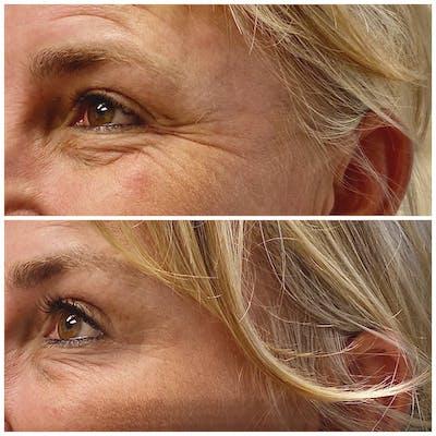 Neurotoxin Botox Gallery - Patient 8525163 - Image 1