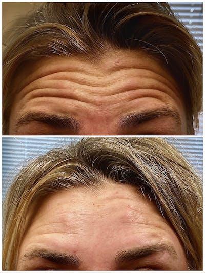 Neurotoxin Botox Gallery - Patient 8525164 - Image 1