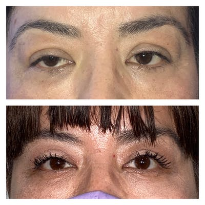 Ptosis Gallery - Patient 8561197 - Image 1