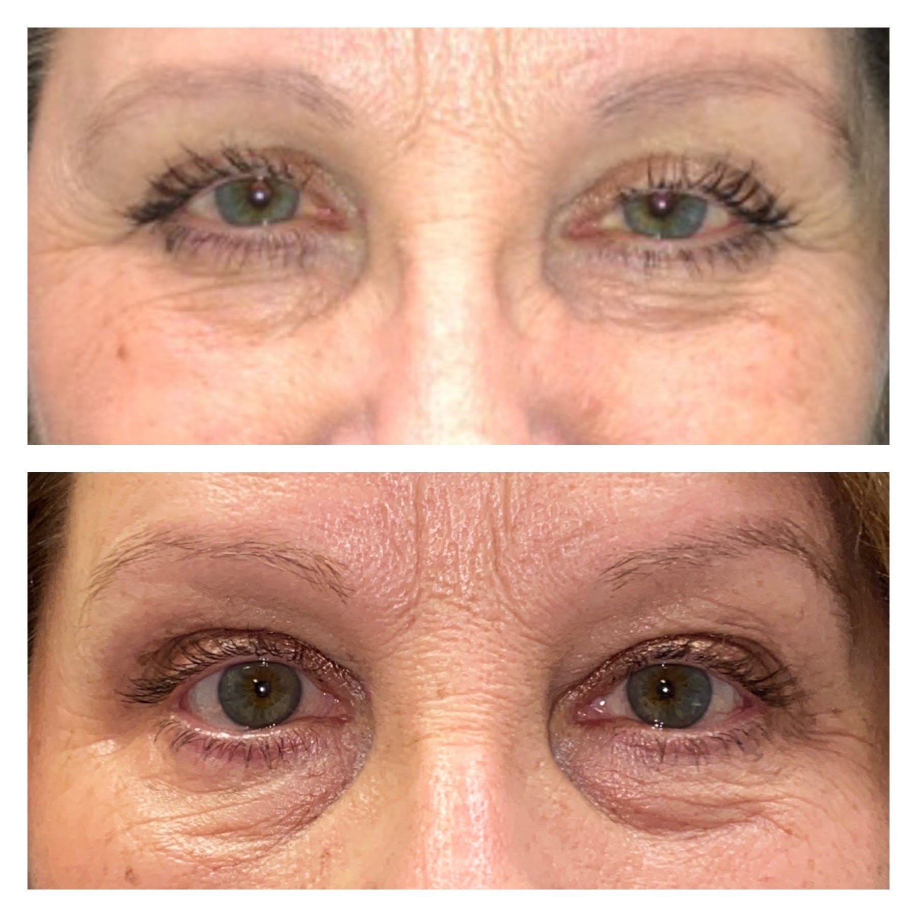 Ptosis Gallery - Patient 8561198 - Image 1