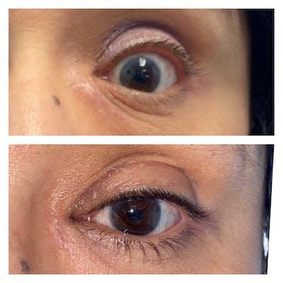 Eyelid Retraction Repair Gallery - Patient 8561212 - Image 1