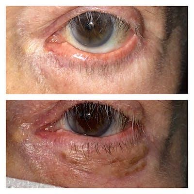 Eyelid Retraction Repair Gallery - Patient 8561273 - Image 1