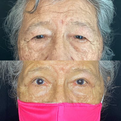 Ptosis Gallery - Patient 8561316 - Image 1