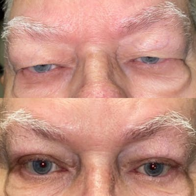 Brow Lift Gallery - Patient 8693777 - Image 1