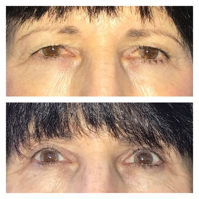 Ptosis Gallery - Patient 8693822 - Image 1