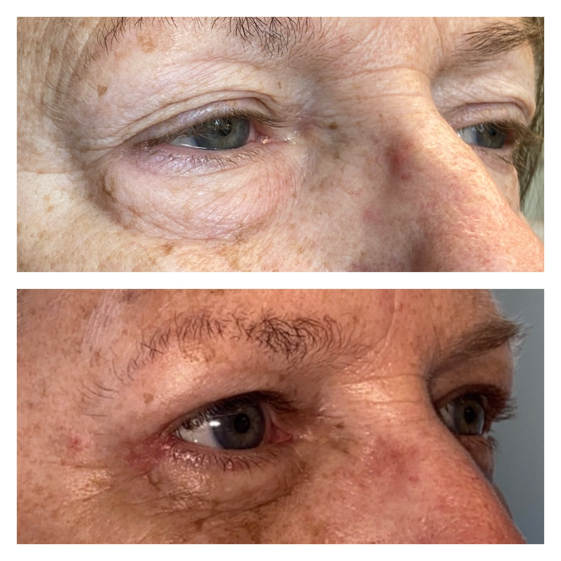 Lower Blepharoplasty Gallery - Patient 8693832 - Image 2