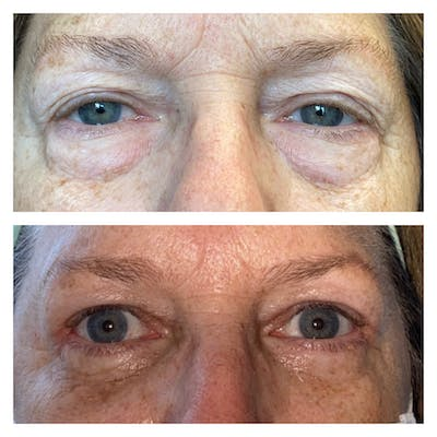 Lower Blepharoplasty Gallery - Patient 8693832 - Image 1