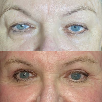 Lower Blepharoplasty Gallery - Patient 9560684 - Image 1