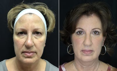 Lower Blepharoplasty Gallery - Patient 10672174 - Image 1