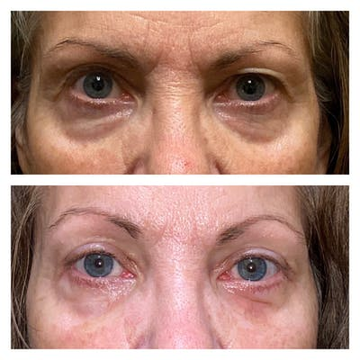 Brow Lift Gallery - Patient 13575110 - Image 1