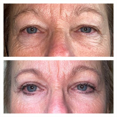 Lower Blepharoplasty Gallery - Patient 13898604 - Image 1