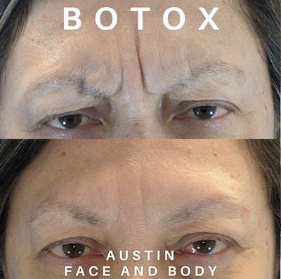 Neurotoxin Botox Gallery - Patient 22114434 - Image 1