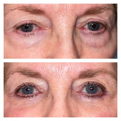 Lower Blepharoplasty Gallery - Patient 40628915 - Image 1