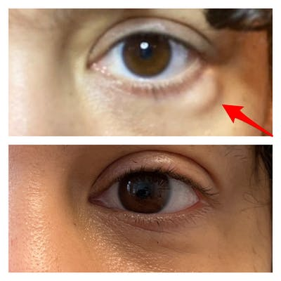 Lower Blepharoplasty Gallery - Patient 40628959 - Image 1