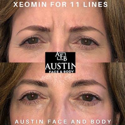 Neurotoxin Botox Gallery - Patient 41025430 - Image 1
