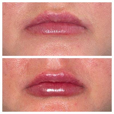 Lip Fillers Gallery - Patient 45216398 - Image 1