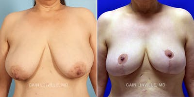 Breast Reduction Gallery - Patient 48689744 - Image 1
