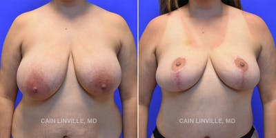 Breast Reduction Gallery - Patient 48689745 - Image 1
