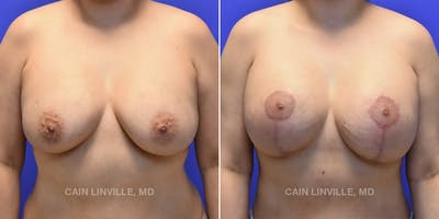Breast Revision Gallery - Patient 48689808 - Image 1
