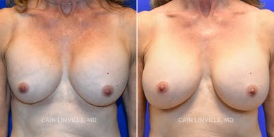 Breast Revision Gallery - Patient 48689809 - Image 1