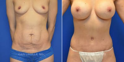 Mommy Makeover Gallery - Patient 48693970 - Image 1