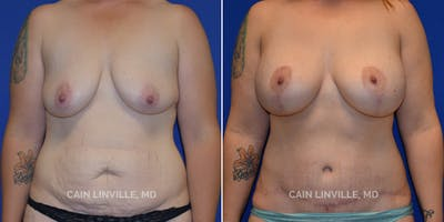 Mommy Makeover Gallery - Patient 48693972 - Image 1