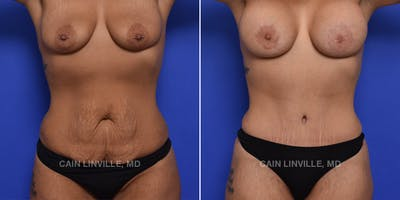 Mommy Makeover Gallery - Patient 48693973 - Image 1