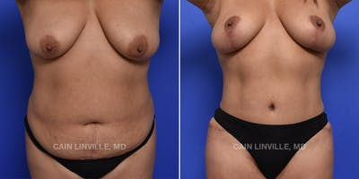 Mommy Makeover Gallery - Patient 48693974 - Image 1