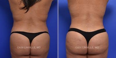 Brazilian Butt Lift (BBL) Gallery - Patient 48693978 - Image 1