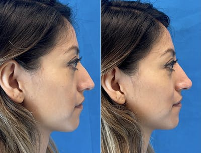 Non-Surgical Rhinoplasty Gallery - Patient 48923459 - Image 1