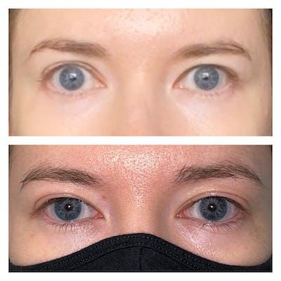 Eyelid Retraction Repair Gallery - Patient 56709579 - Image 1