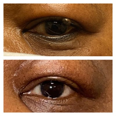 Eyelid Skin Cancer Removal Gallery - Patient 58007935 - Image 1