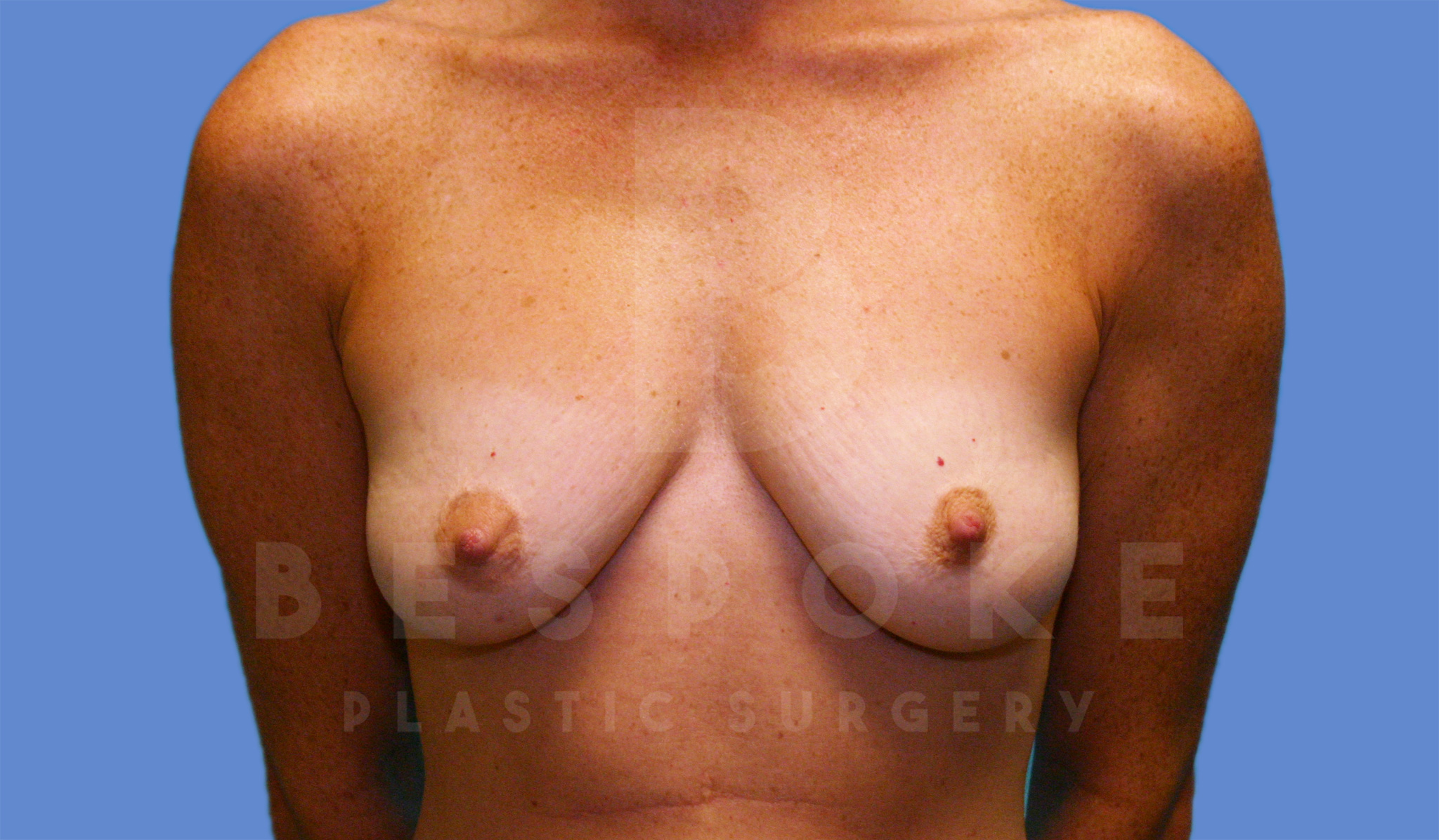 Breast Augmentation Gallery - Patient 4600002 - Image 1