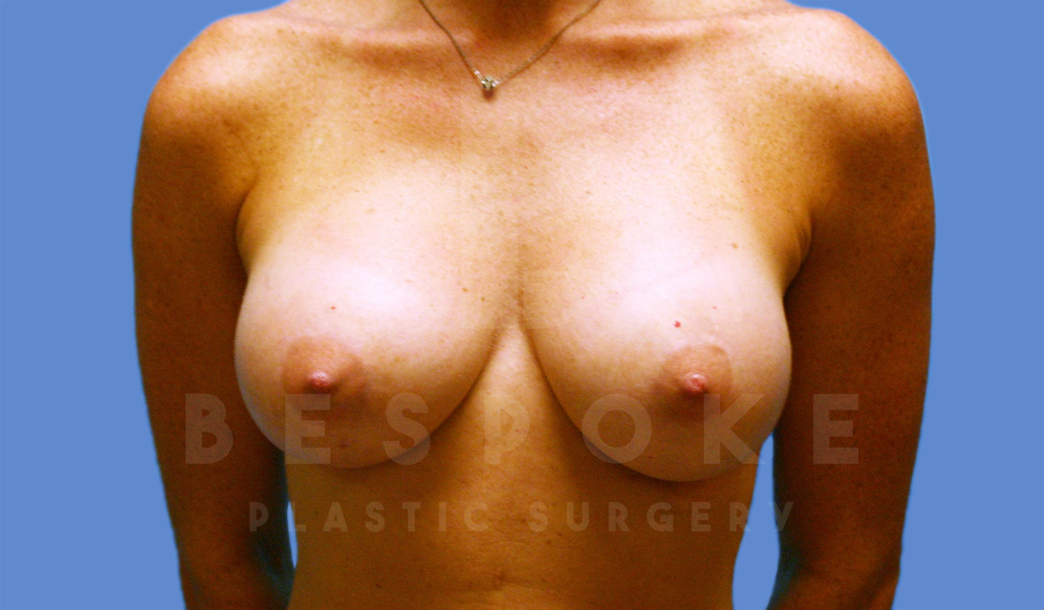 Breast Augmentation Gallery - Patient 4600002 - Image 2