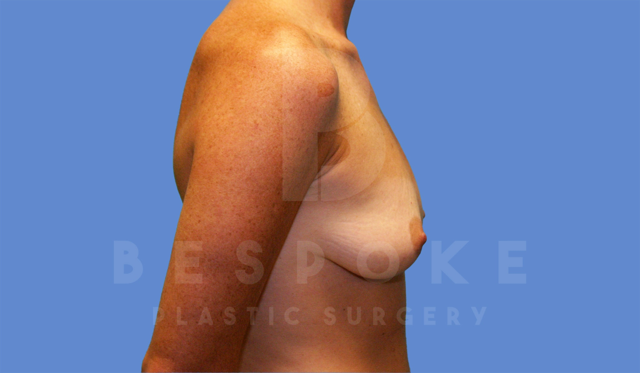 Breast Augmentation Gallery - Patient 4600002 - Image 3