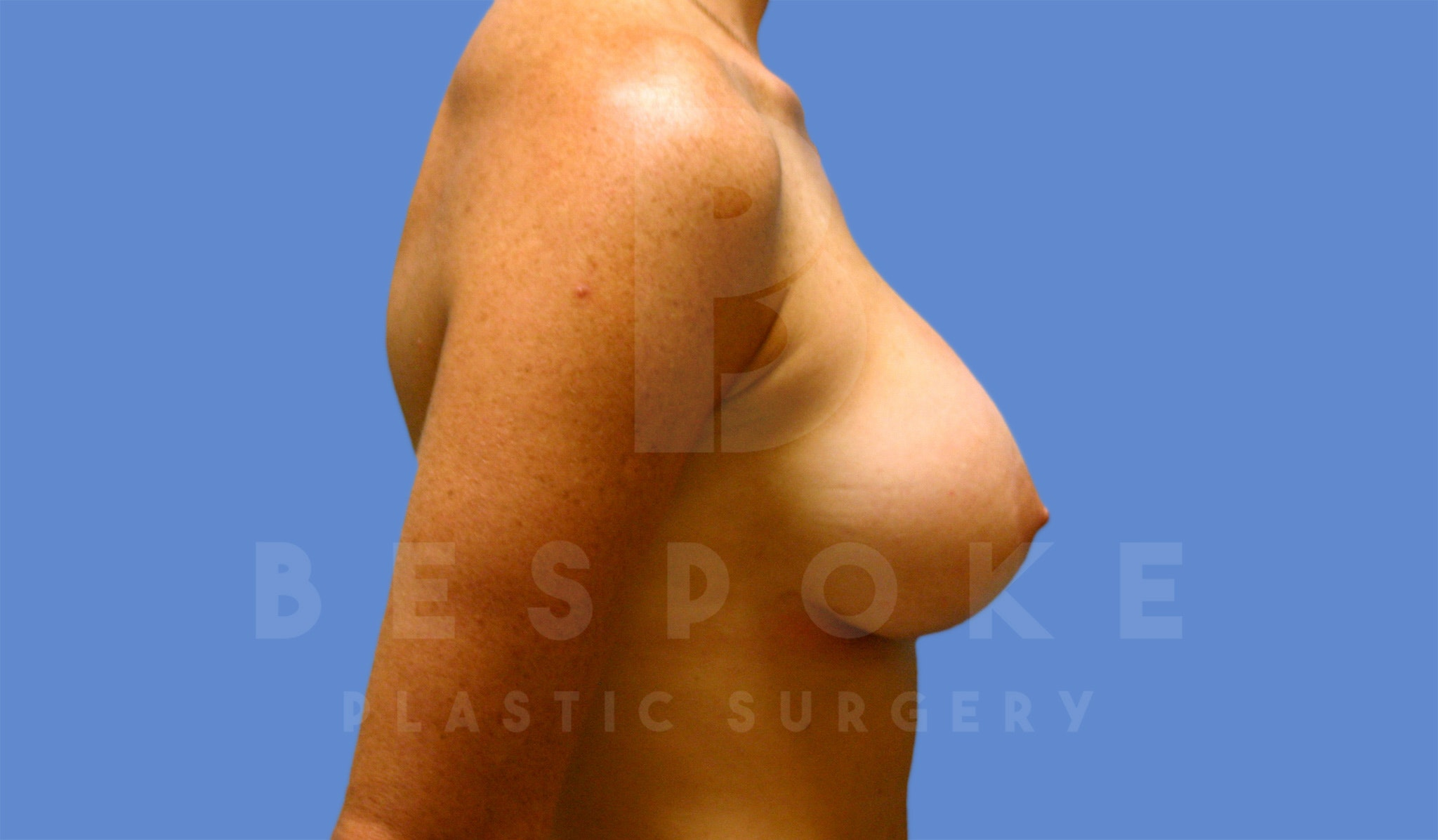 Breast Augmentation Gallery - Patient 4600002 - Image 4