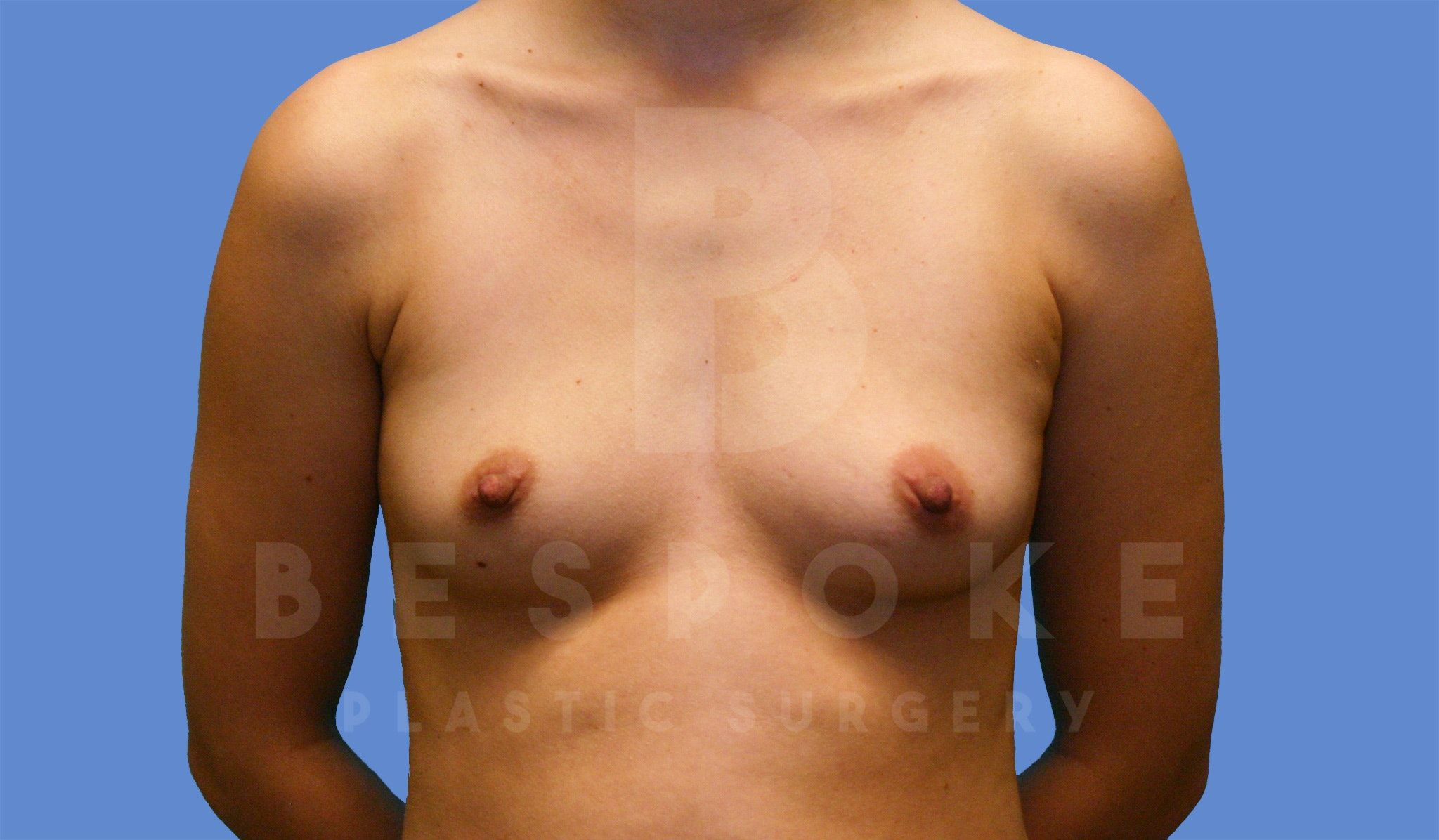 Breast Augmentation Gallery - Patient 4600003 - Image 1