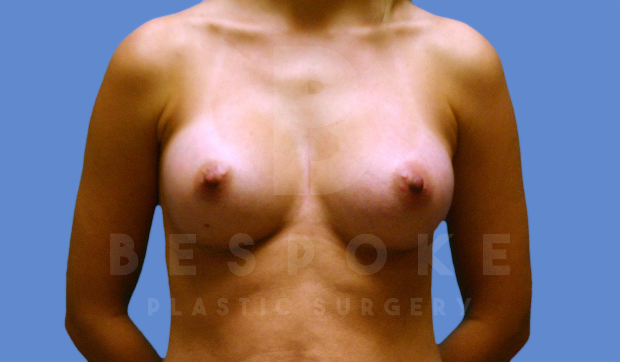 Breast Augmentation Gallery - Patient 4600003 - Image 2
