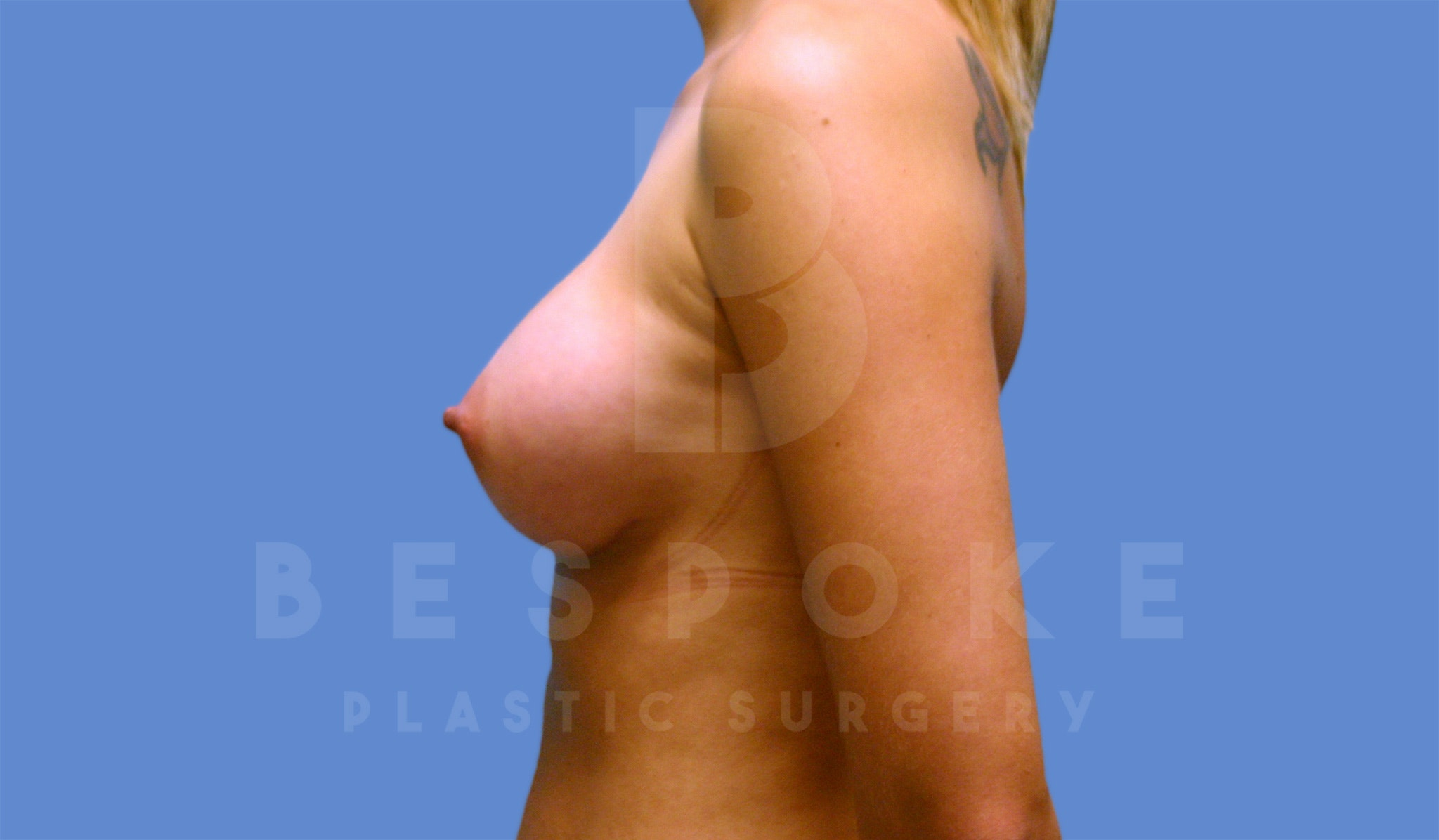 Breast Augmentation Gallery - Patient 4600003 - Image 4