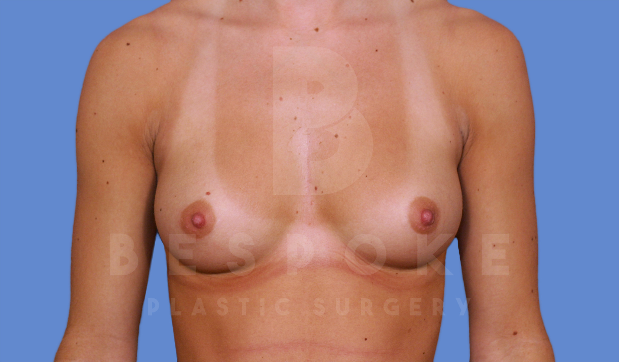 Breast Augmentation Gallery - Patient 4600004 - Image 3