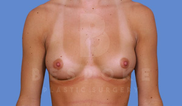 Breast Augmentation Gallery - Patient 4600004 - Image 1