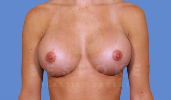 Breast Augmentation Gallery - Patient 4600004 - Image 2