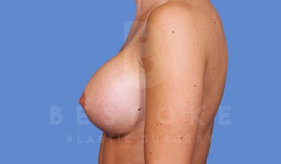 Breast Augmentation Gallery - Patient 4600004 - Image 4