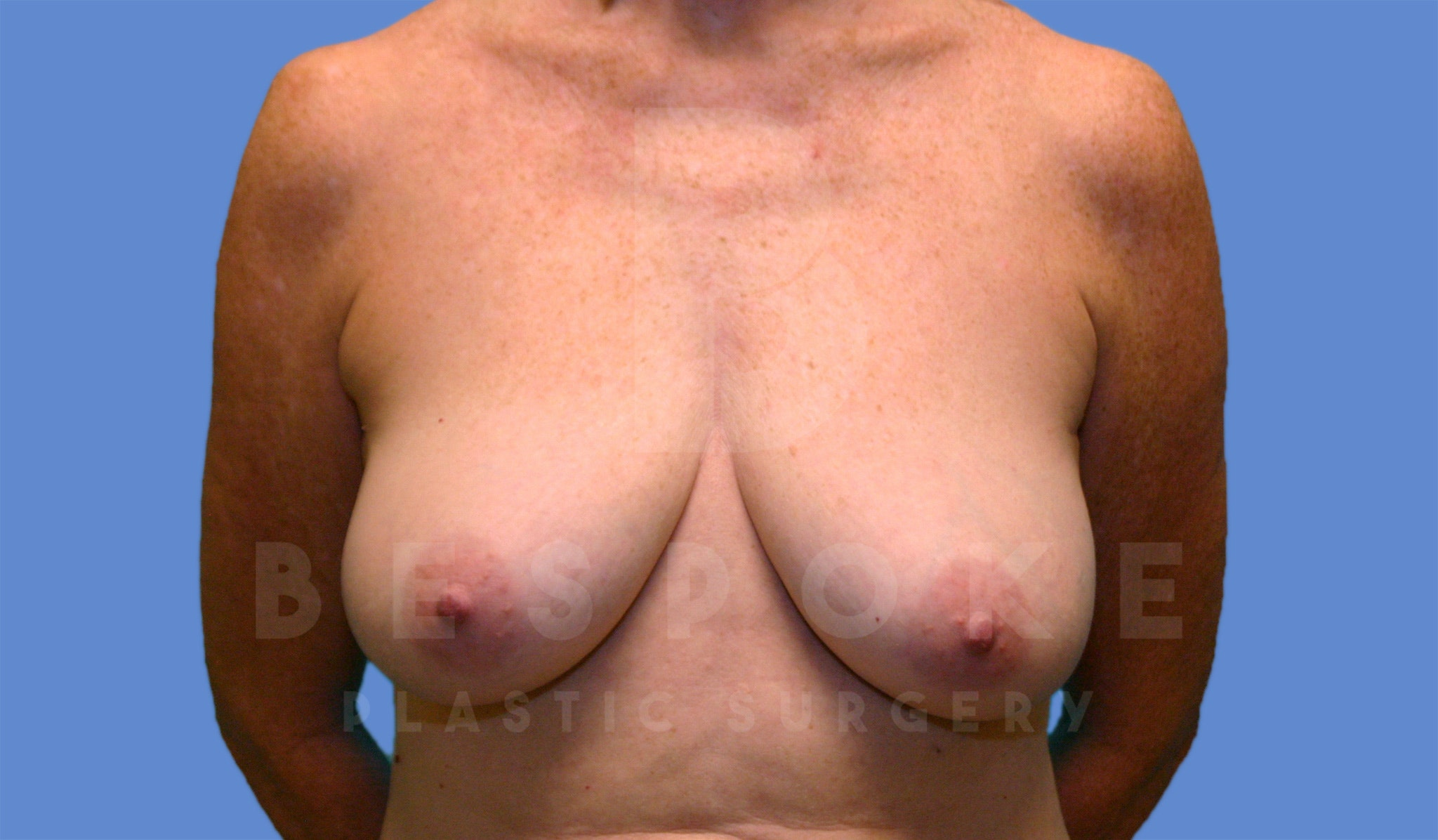 Breast Lift With Implants Gallery - Patient 4600007 - Image 1