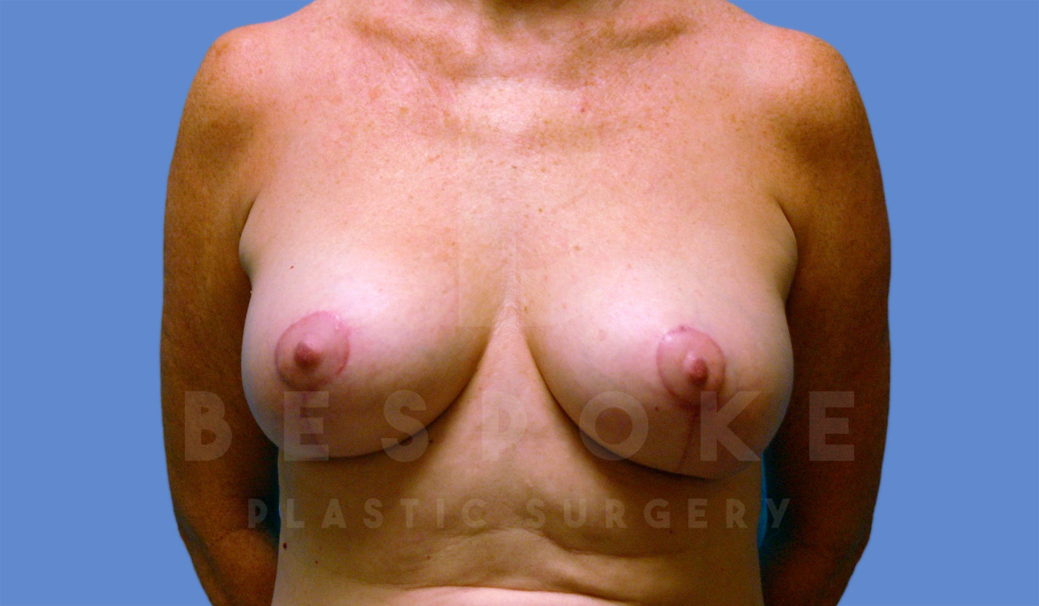 Breast Lift With Implants Gallery - Patient 4600007 - Image 2