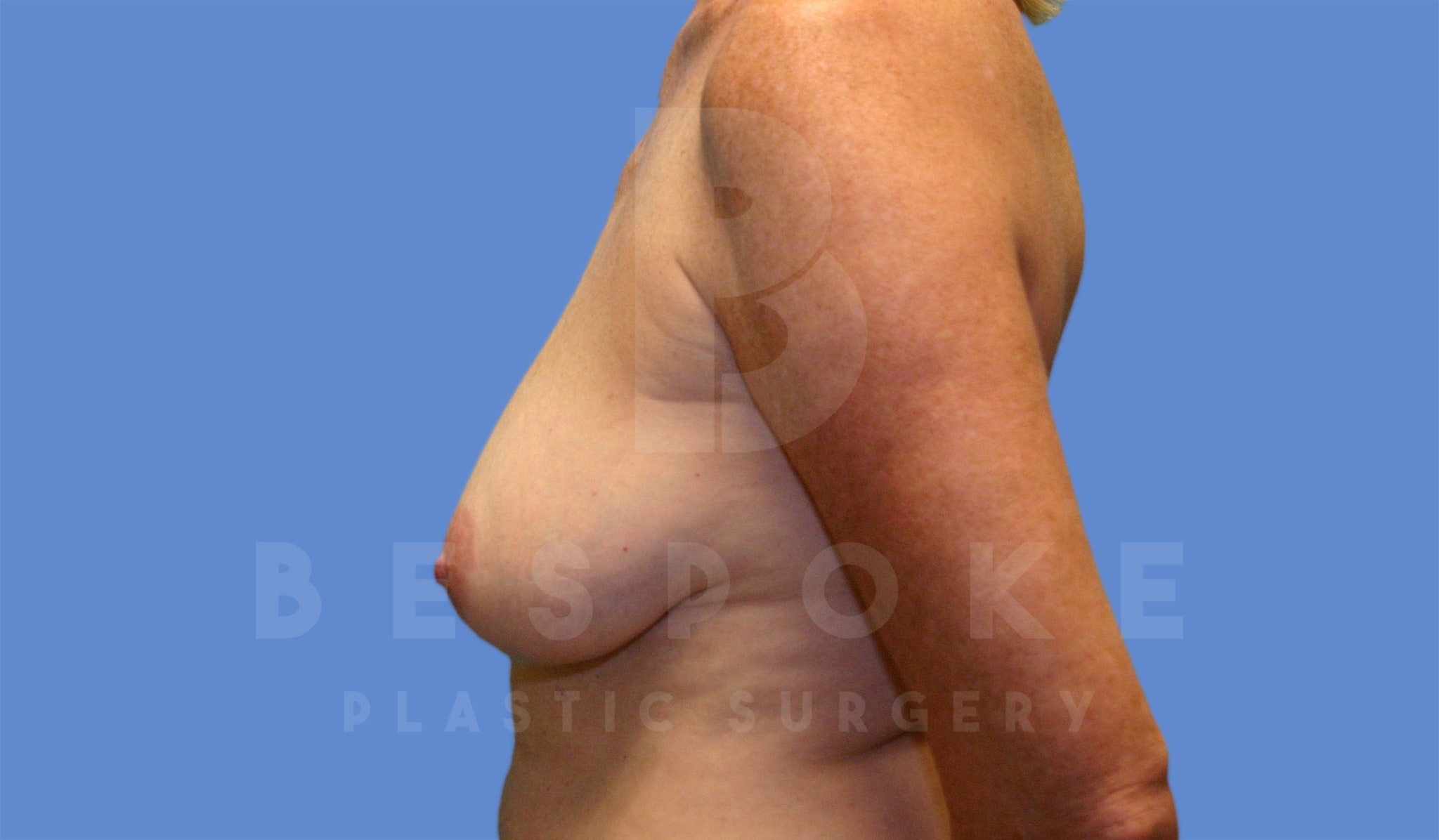 Breast Lift With Implants Gallery - Patient 4600007 - Image 3